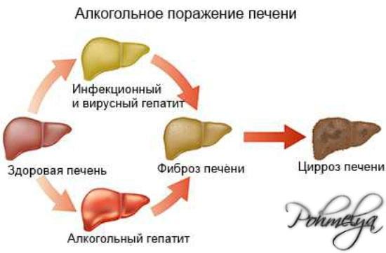 Первые признаки цирроза печени от алкоголя
