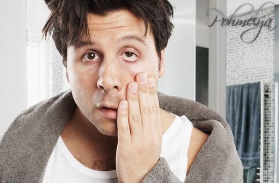 simptomi pohmelya11