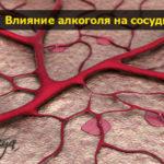 alkogol i sosudi pohmelya b167 min1