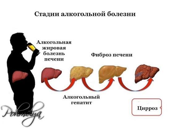 bolezni pecheni ot alkogolya pohmelya n443 min