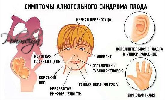 alkogolnui sindrom ploda pohmelya v86 min
