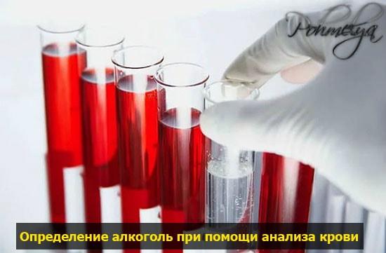 analis krovi na vuyavlenie alkogolya pohmelya v234 min