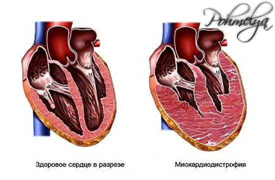 distrofia miokarda pohmelya v144 min