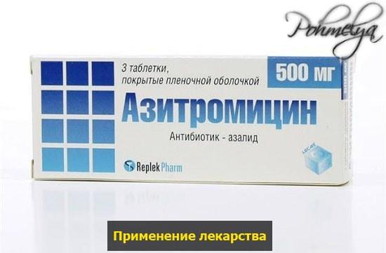 lekarstvo azitromicun pohmelya n762 min