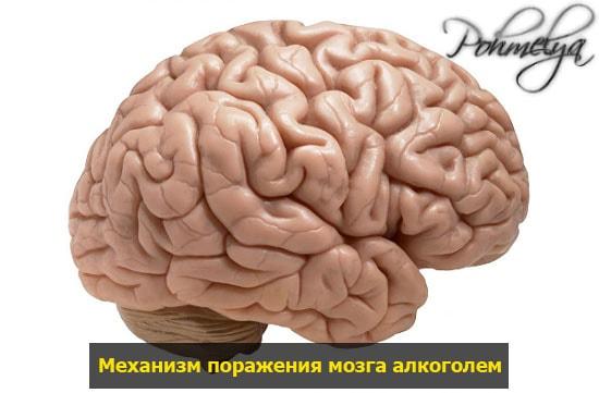 mozg i alkogol pohmelya n604 min