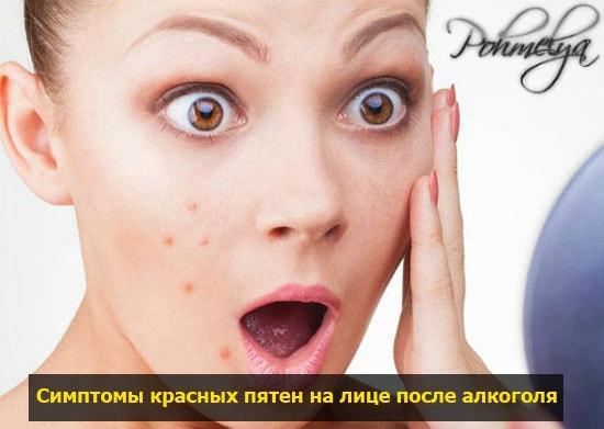 simptomu krasnuh paten na lice pohmelya v53 min