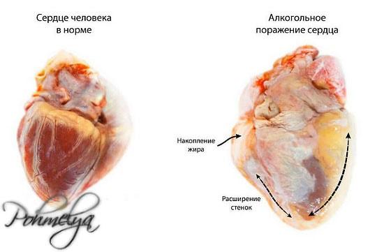 vlianie alkogolya na serdce pohmelya v54 min