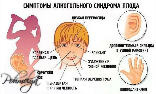 alkogolnui sindrom ploda pohmelya v537 min