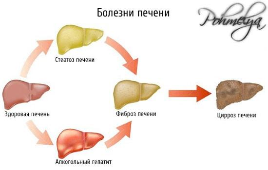bolezni pecheni vusvannue alkogolem pohmelya v654 min