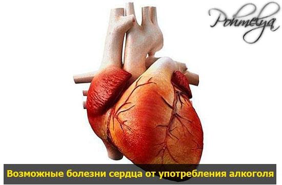 bolezni serdca ot alkogolya pohmelya v1067 min