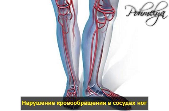 naryshenie krovoobrashenia v nogah pohmelya v1115 min