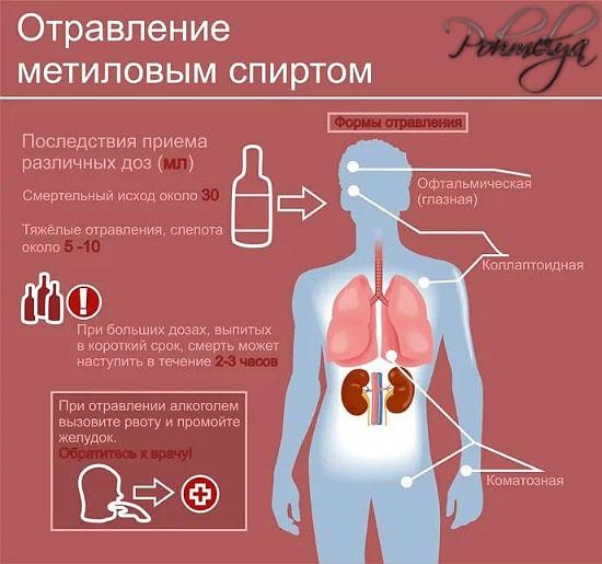 otravlenie metilovum spirtom pohmelya v1302 min