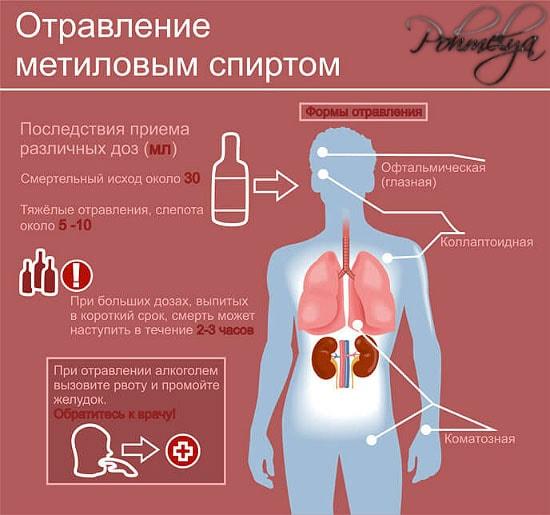 otravlenie syrrogatnum alkogolem pohmelya v1712 min