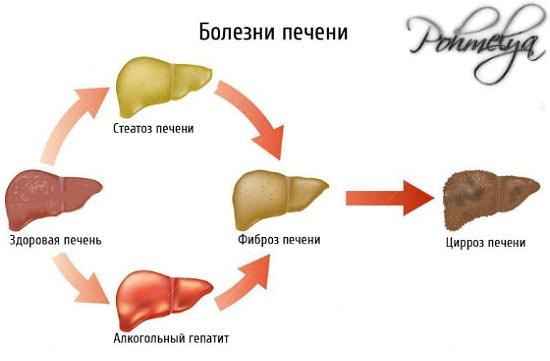 posledstvia alkogolya pri gepatite pohmelya v1834 min