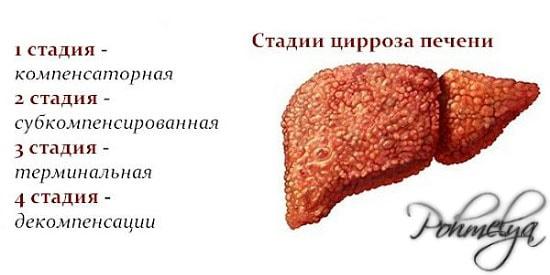 stadii cirrosa pecheni pohmelya v1733 min