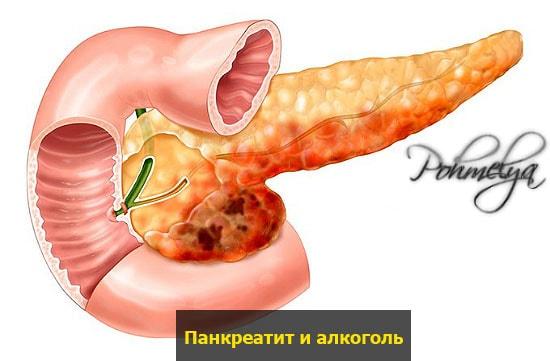 posledstvia pankreatita s alkogolem pohmelya v2316 min
