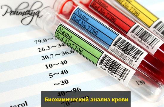 biohimicheskiy analiz krovi pohmelya v2343 min