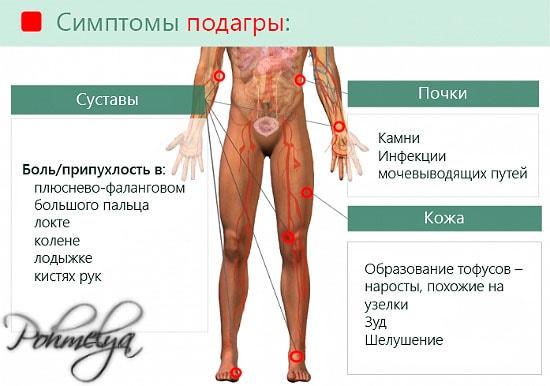simptomu podagru pohmelya v2492 min
