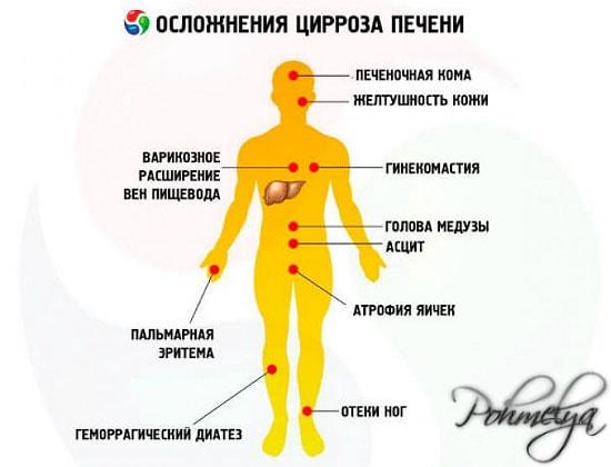 Что такое цирроз печени и как его лечить фото