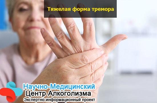 Что выпить чтобы не тряслись руки