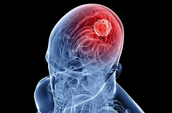 povrejdenie alkogolem ychastkov mozga pohmelya 04g min