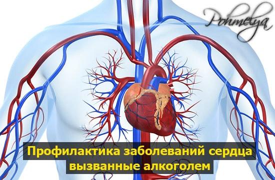 profilactika zabolevaniy serdca pohmelya b170 min