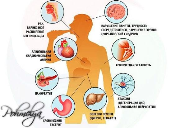 vlianie alkogolya na organizm pohmelya n532 min