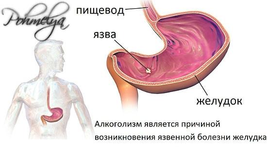 alkogol i jelydok pohmelya v124 min
