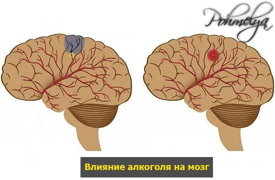 alkogol i mozg pohmelya n602 min