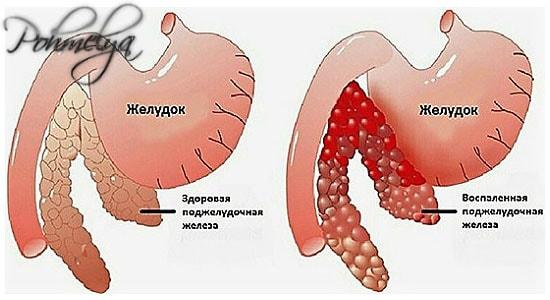 alkogol i podjelydochnaya jeleza pohmelya v123 min