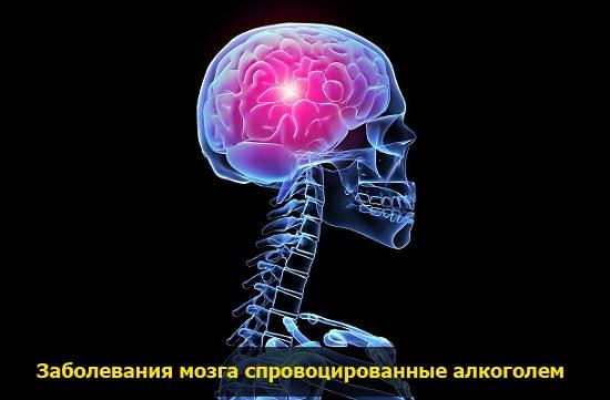 zabolevaniya mozga ot alkogolya pohmelya n606 min