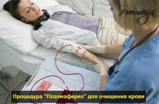 plasmaferes pohmelya v965 min