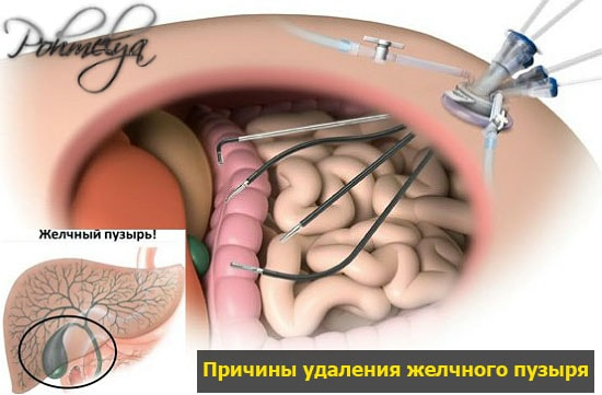 pokazania k ydaleniu jelchnogo puzuria pohmelya v862 min