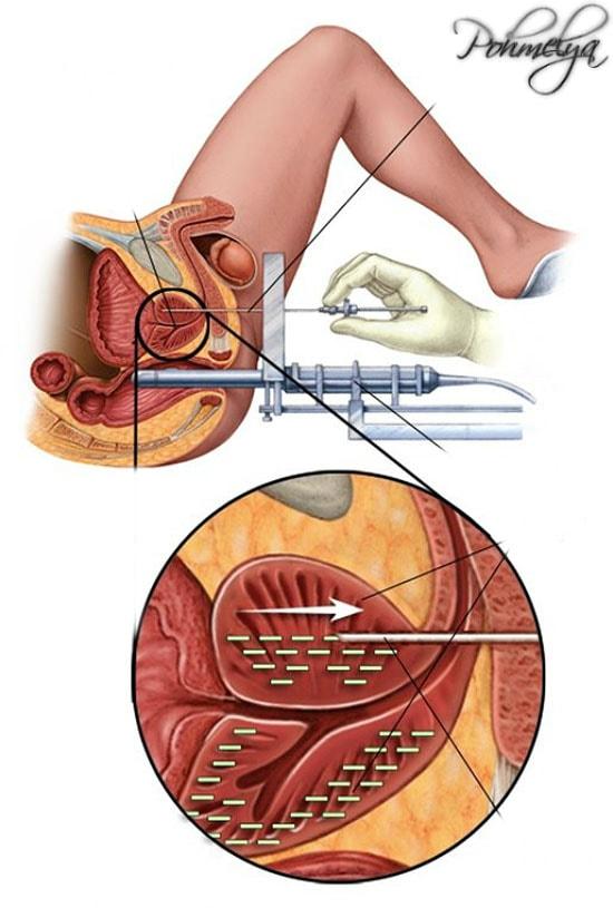 vlianie alkogolya na prostaty pohmelya v372 min