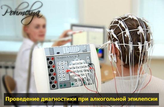 diagnostika alkogolnoi epilepsii pohmelya v1075 min