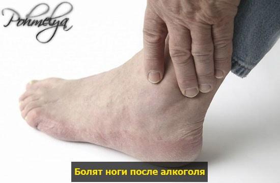 posle alkogolya bolat nogi pohmelya v1111 min