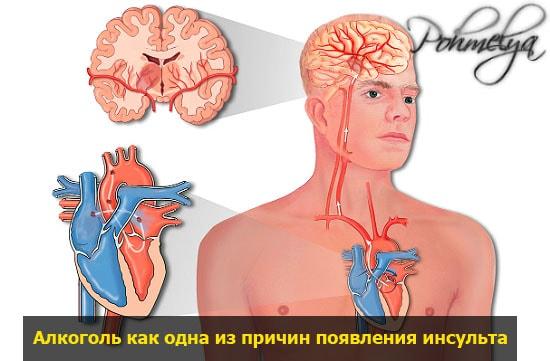 alkogol i insult pohmelya v1921 min