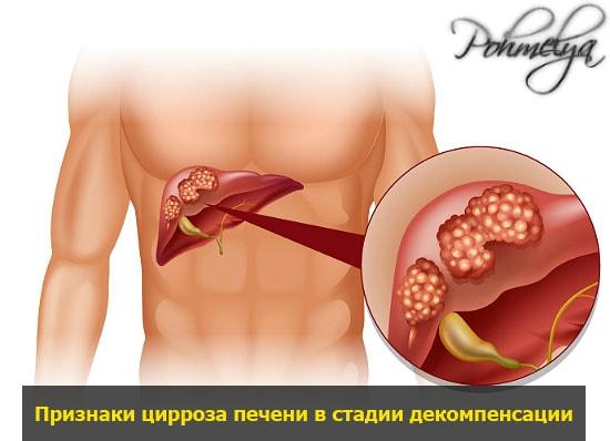 cirrosa pecheni poslednaya stadia pohmelya v1734 min