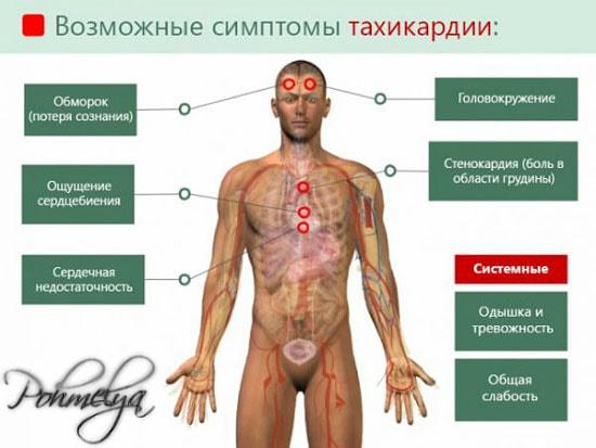 simptomu tahikardii pohmelya v1763 min