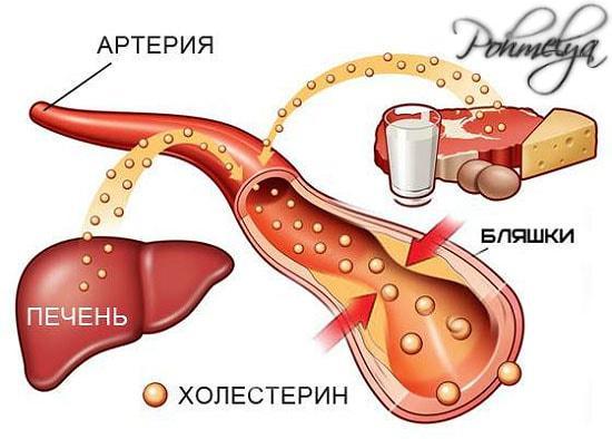 holesterin v krovi pohmelya v2332 min