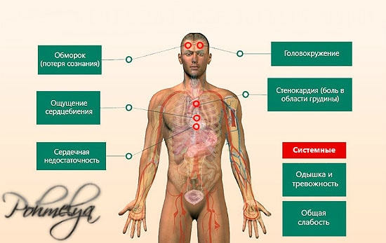 simptomu serdcebienia pohmelya v2484 min