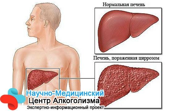 Цирроз печени хроническое заболевание